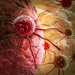 лечение рака желудка, Ассута