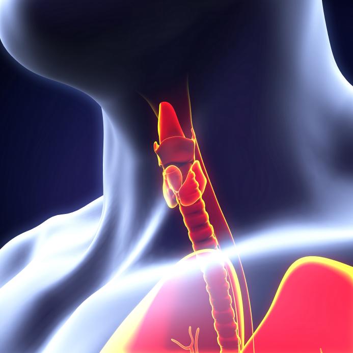 Лечение рака щитовидной железы в Израиле