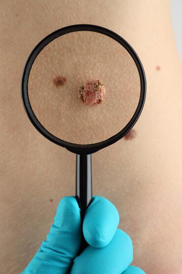 лечение меланомы в Израиле Лечение меланомы Лечение меланомы в Ассуте Mnm 1