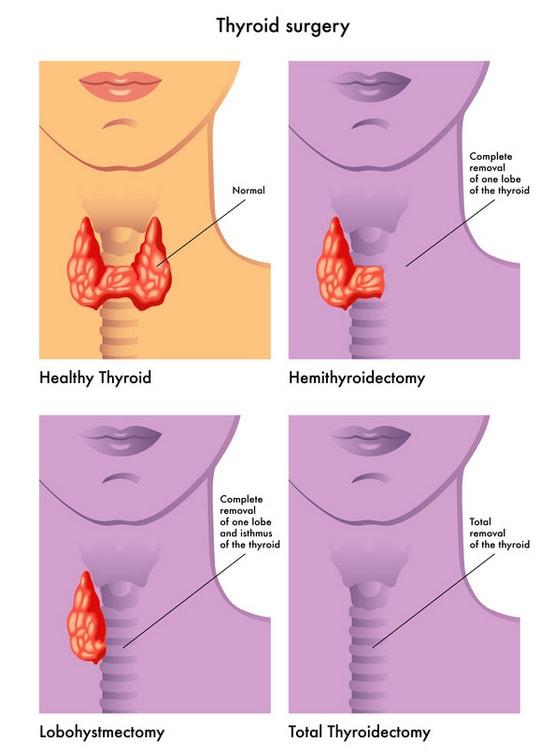 Удаление щитовидной железы без шрамов в клинике Ассута